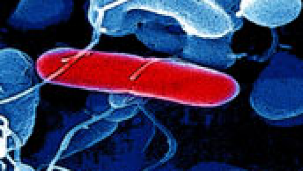 Article image for Food poisoning on the rise