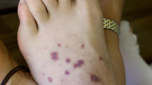 Article image for A timely meningococcal warning
