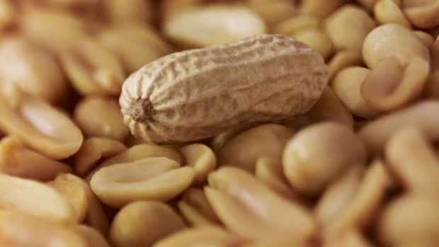 Article image for Who is more likely to have a peanut allergy?