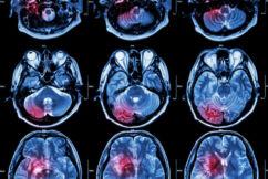 Neurosurgeon giving hope to the hopeless