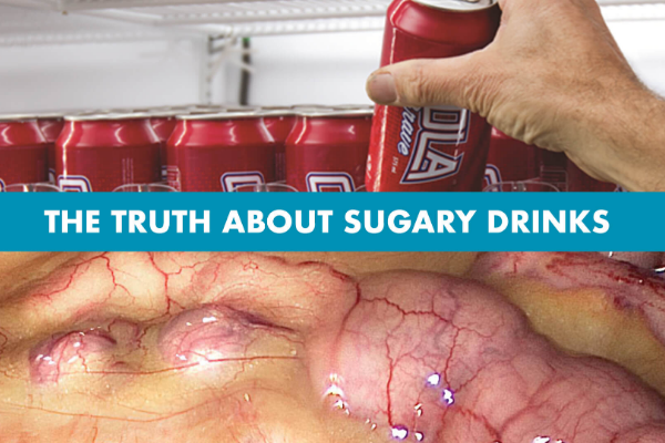 Sugary drinks now just a normal part of every day life… but they're killing us