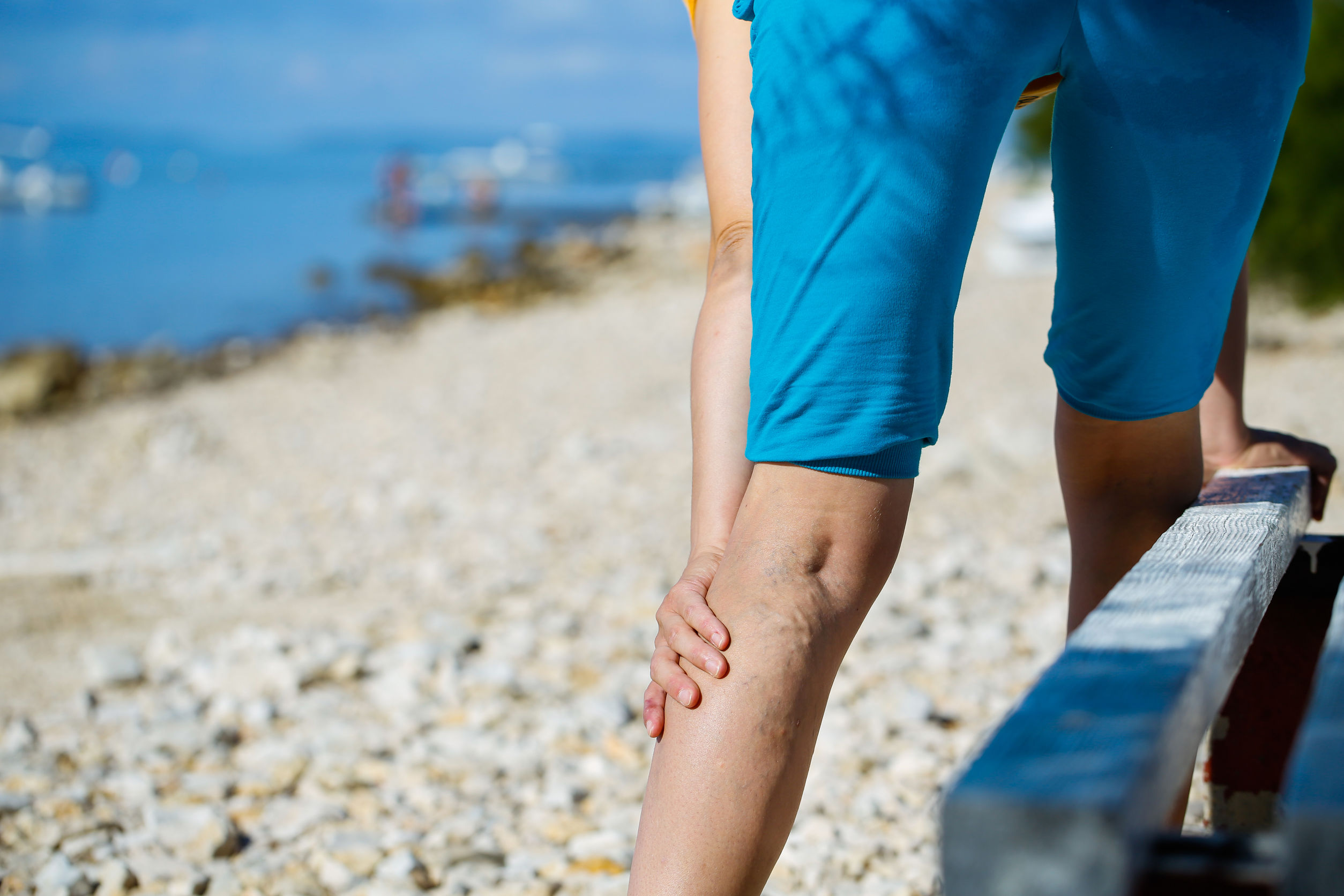 How can you prevent DVT when travelling?