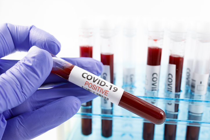 More COVID-19 cases detected in NSW